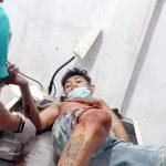 >> Salah satu korban penyerangan mendapat perawatan medis di rumah sakit.(ist)